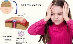 Viem Mang Nao